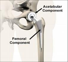 srb-hipreplacement